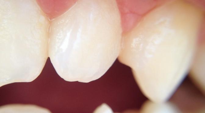 Oral Surgery Glitches the Matrix